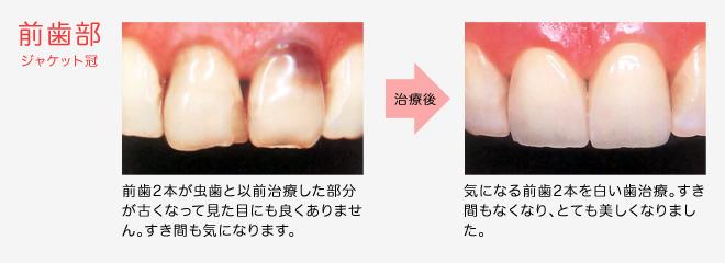 臼歯部 インレー