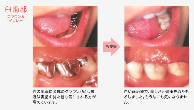 臼歯部 クラウン&インレー