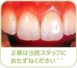 どの歯を治療したかわかりますか? 正解は当院スタッフにおたずねください^^