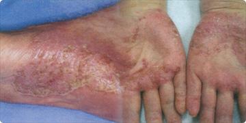 金属アレルギーの例:掌蹠膿疱症(しょうせきのうほうしょう)